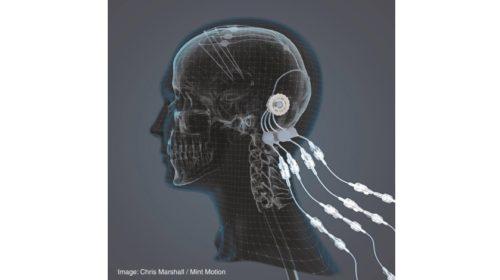 Kovový 3D tisk přináší naději pro léčbu Parkinsonovy choroby